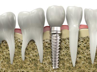 Zahnimplantat in der Zahnklinik Ungarn