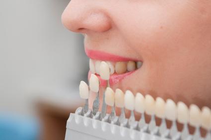 Zahnfarbe auswählen_Zahnklinik Ungarn