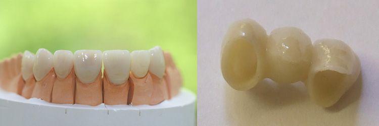 Zirkonkrone in der Zahnklinik Ungarn