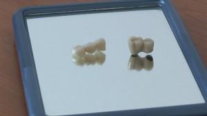 Metallkeramik Krone vs. Zirkonkrone in der Zahnarztpraxis Ungarn