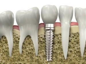 Zahnimplantat Fullplant, Zahnimplantat Wital in der Zahnklinik Ungarn, Mosonmagyarovar